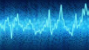 Cinq graphiques qui suggèrent un potentiel de baisse sur les marchés actions